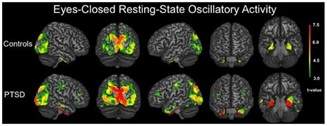 Frontiers | Resting-State Neurophysiological Abnormalities