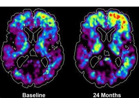 At a glance - Advances in neuroimaging of traumatic brain